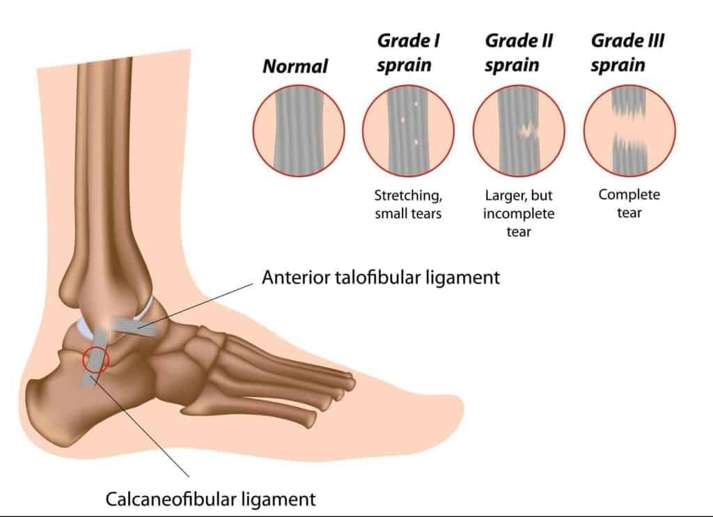 ankle ligament tear types and grades