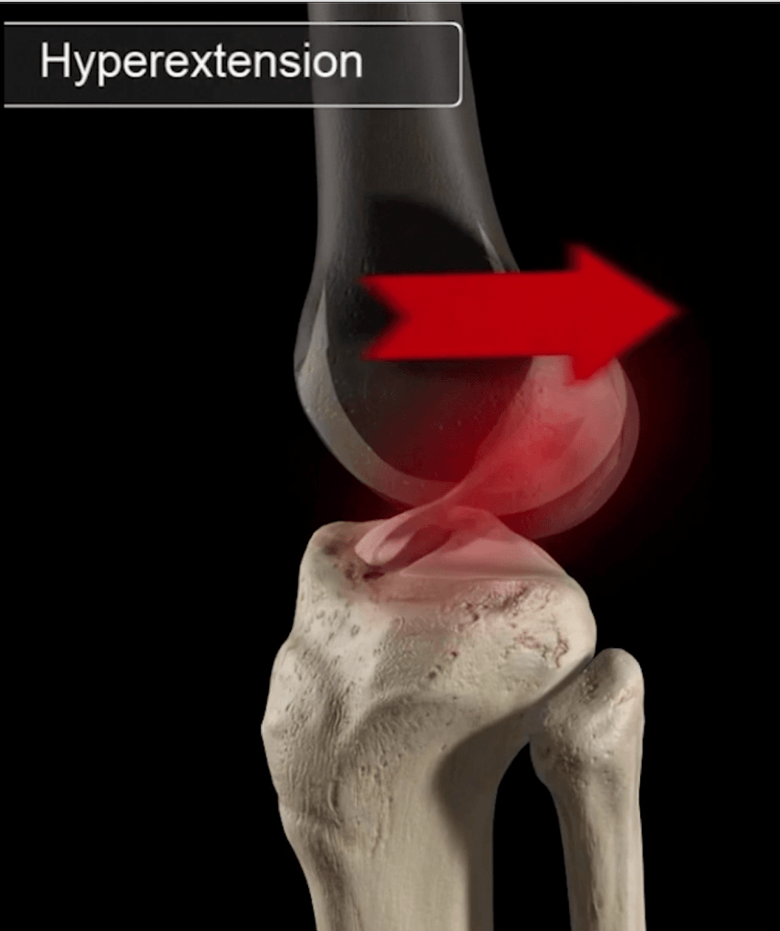 ACL tear mechanism - hyperextension