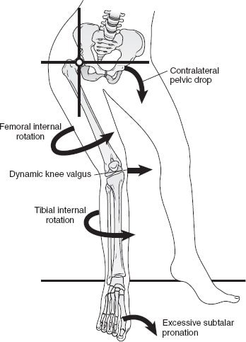 PFPS patellofemoral pain biomechanics in runner's knee