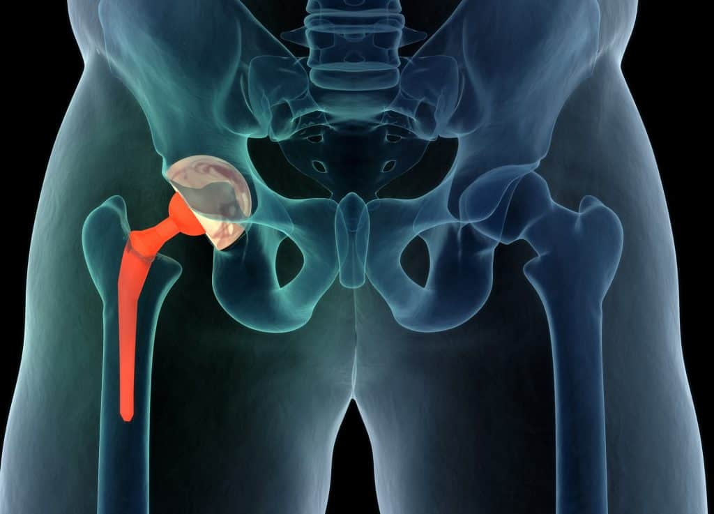 hip replacement and knee replacement due to osteoarthritis