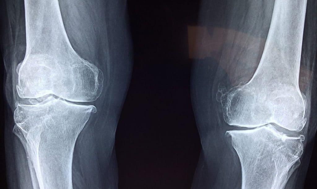 osteoarthritis on x-ray