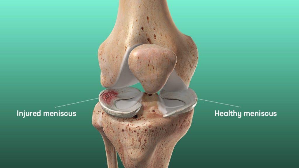 mensicus tear vs healthy meniscus