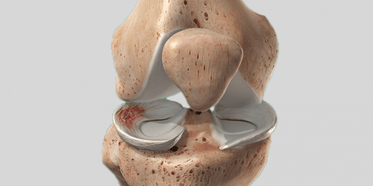 The  Complete Guide to a Meniscus Tear