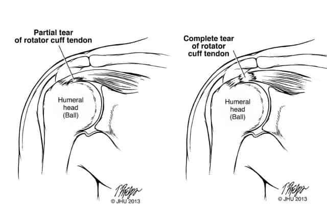 anatomy of a rotator cuff tear
