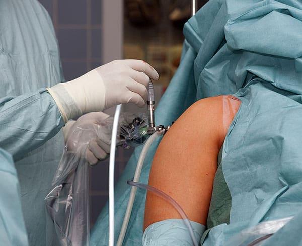 surgery for shoulder tendon tear