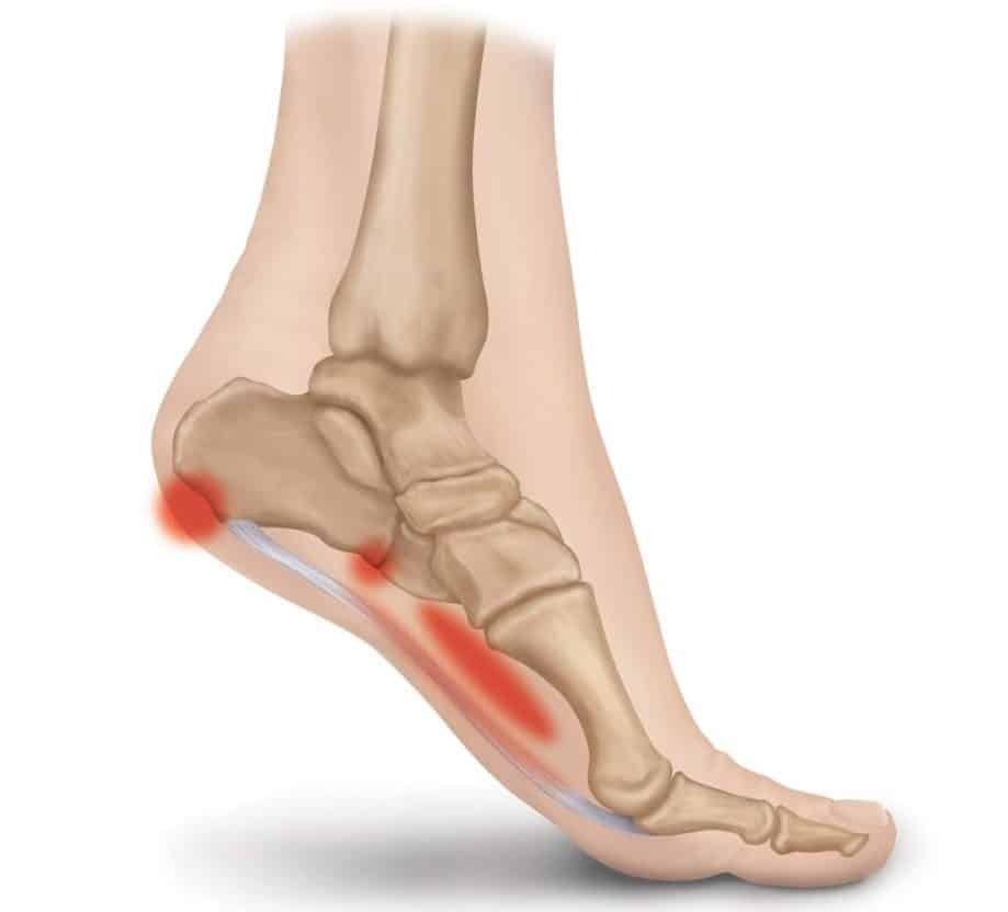plantar fasciitis location of pain