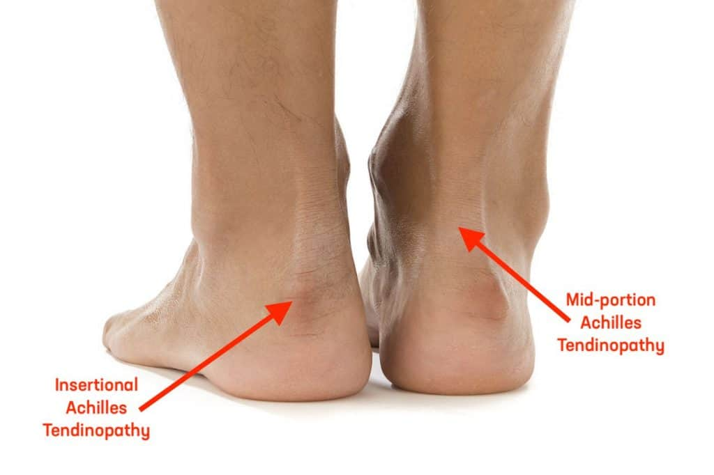 Achilles tendinitis insertional tendinopathy and mid-portion tendinopathy