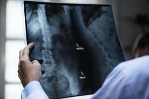 x-ray or MRI