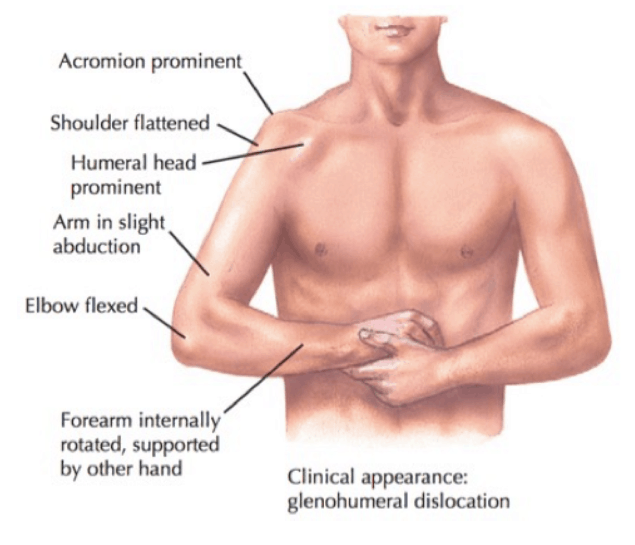 shoulder_dislocation_posture