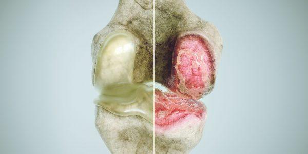Normal joint vs osteoarthritis