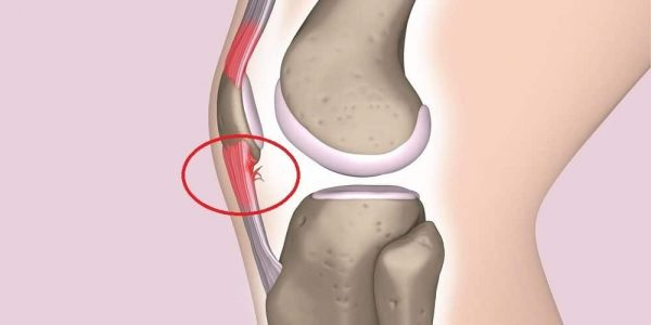 jumpers knee pain location